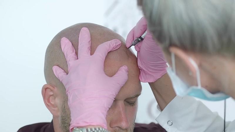 tricopigmentazione-costi-tecnica